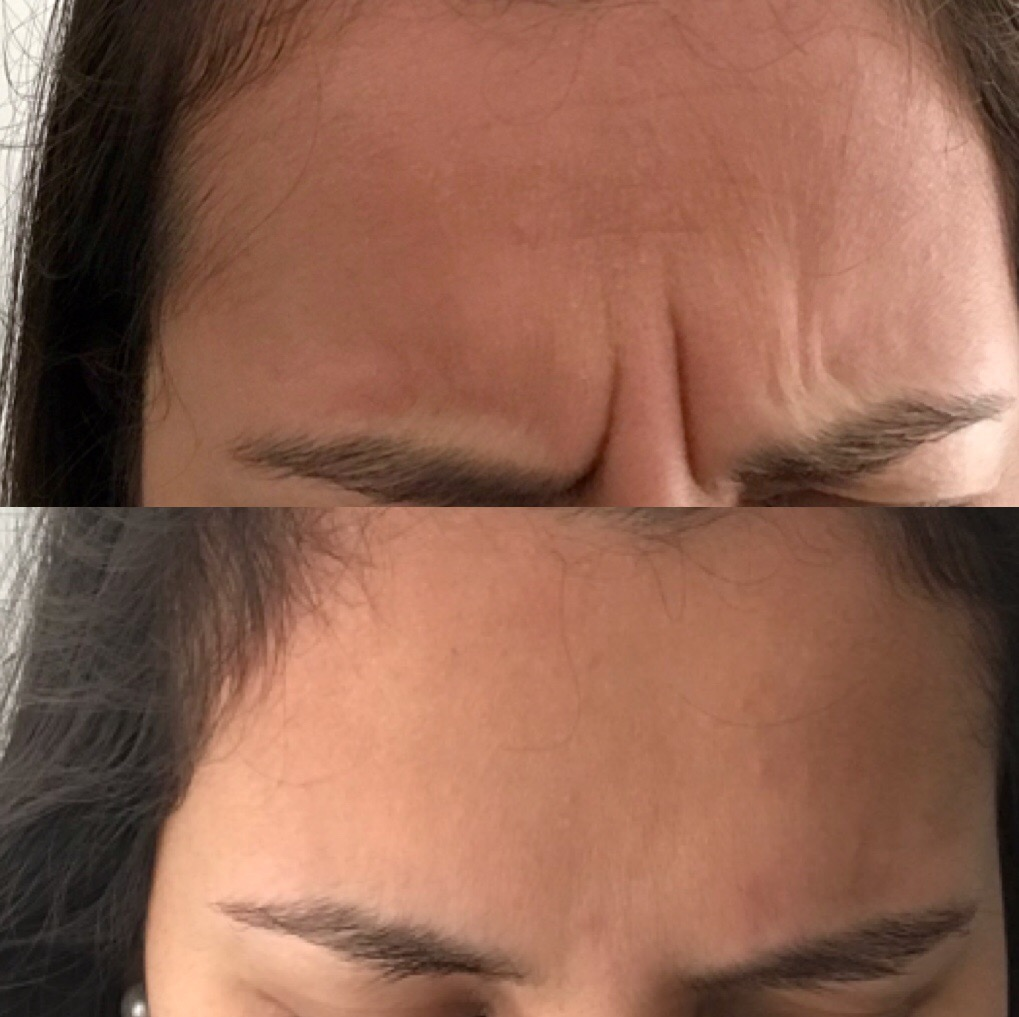 A close up of a woman after receiving a botox treatment_botox before and after