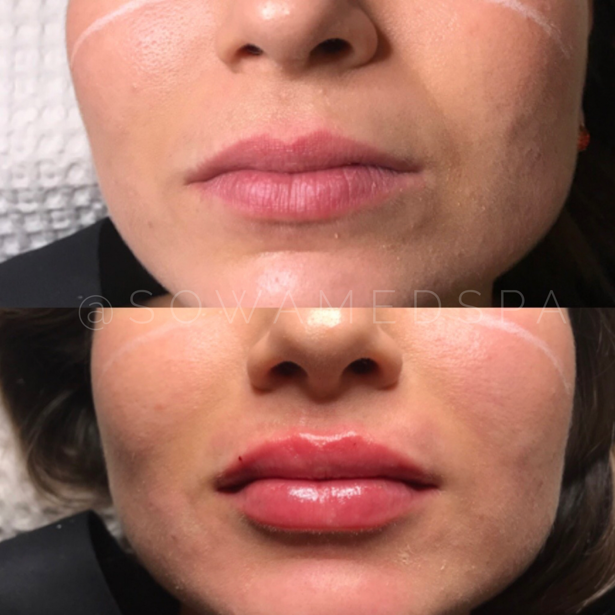 A close-up of a woman after receiving lip fillers_lip fillers before and after