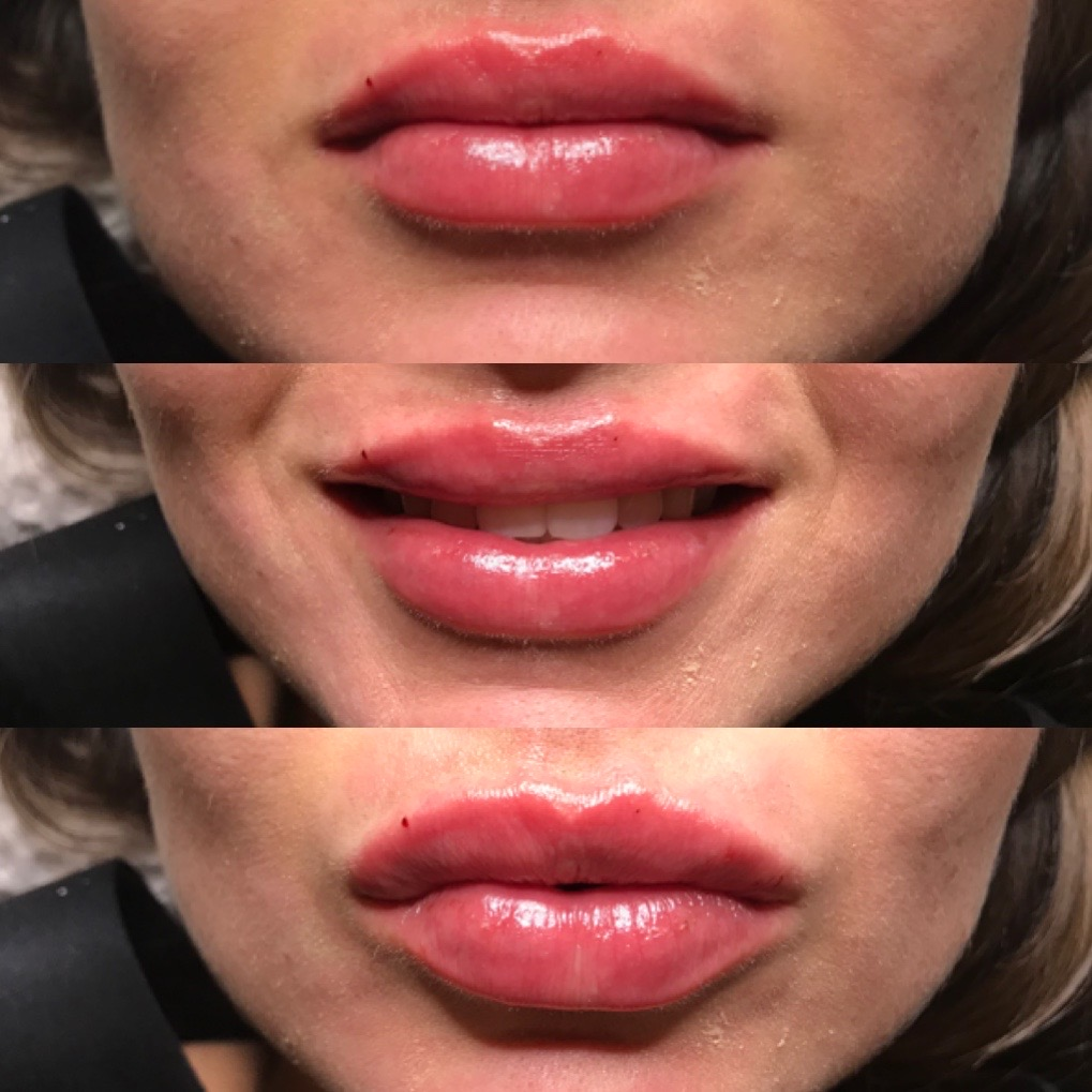 A close-up of a woman after receiving lip fillers