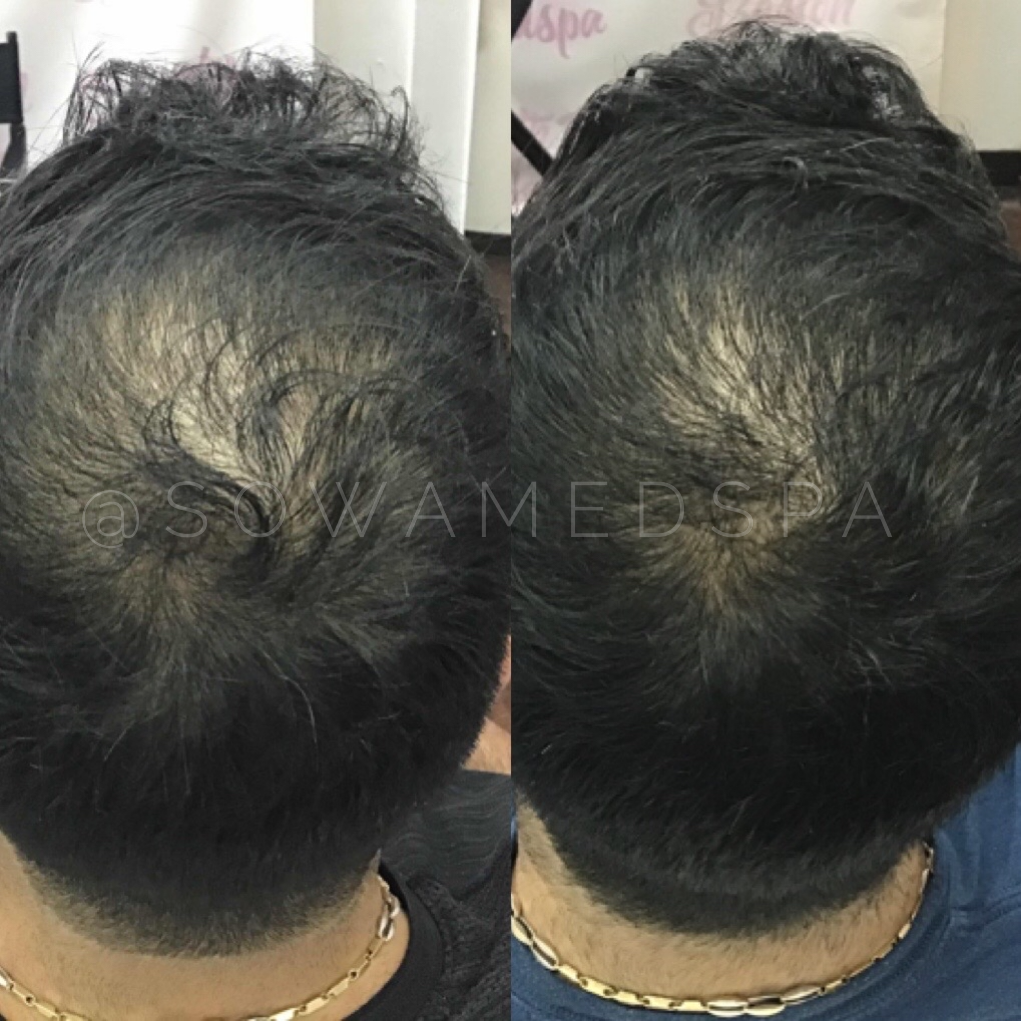 platelet rich plasma prp hair restoration (1)