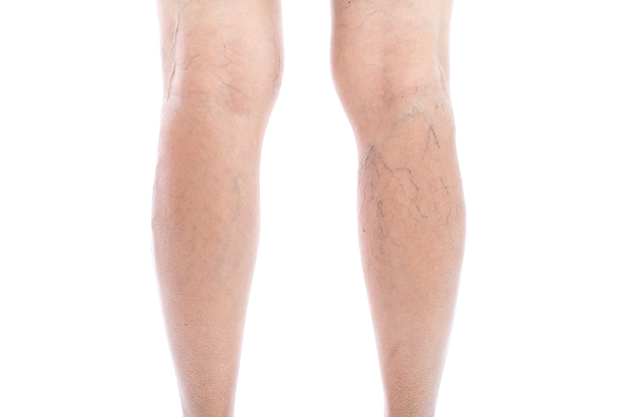a woman's legs with varicose veins - sclerotherapy
