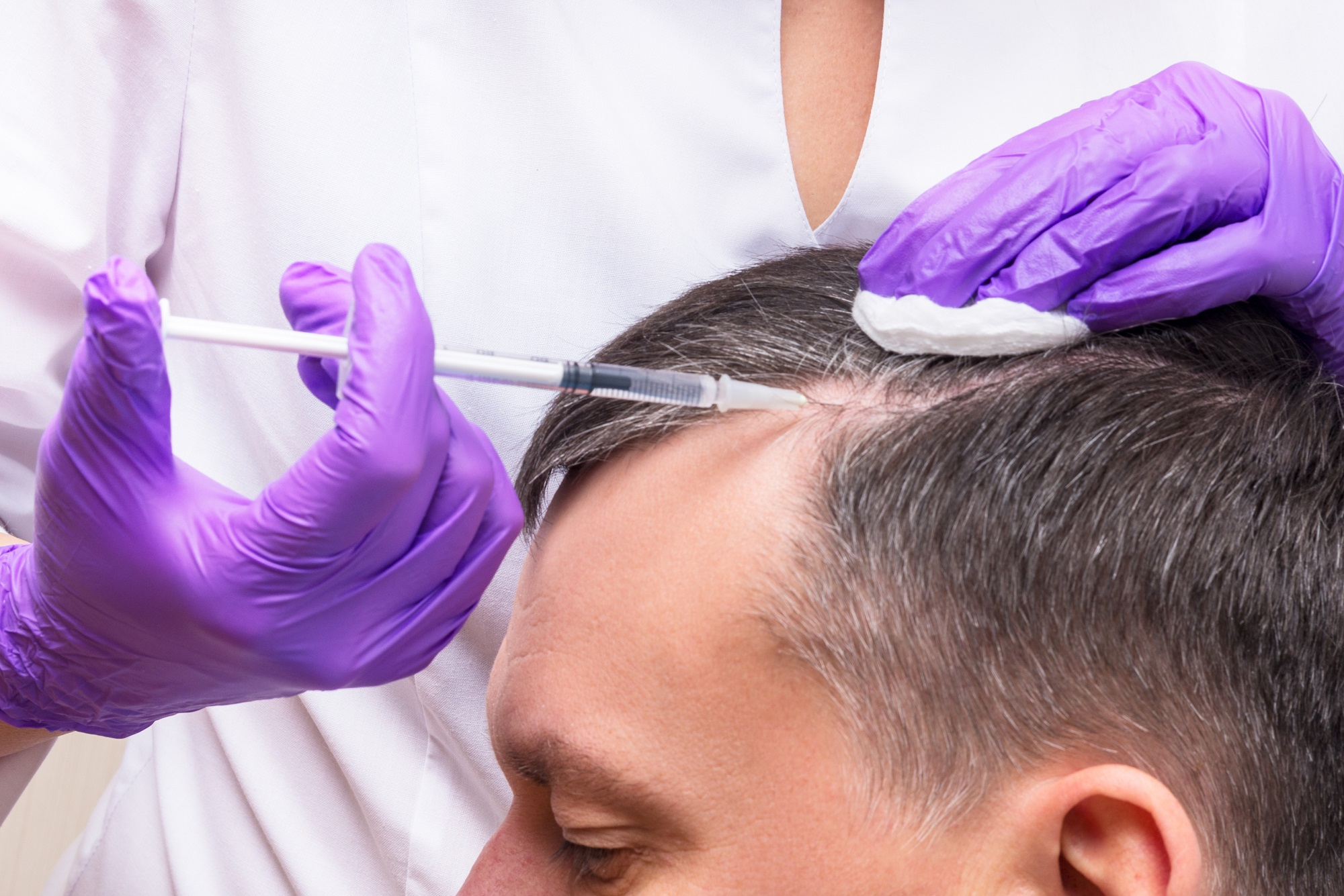 A nurse practitioner injecting PRP for hair loss